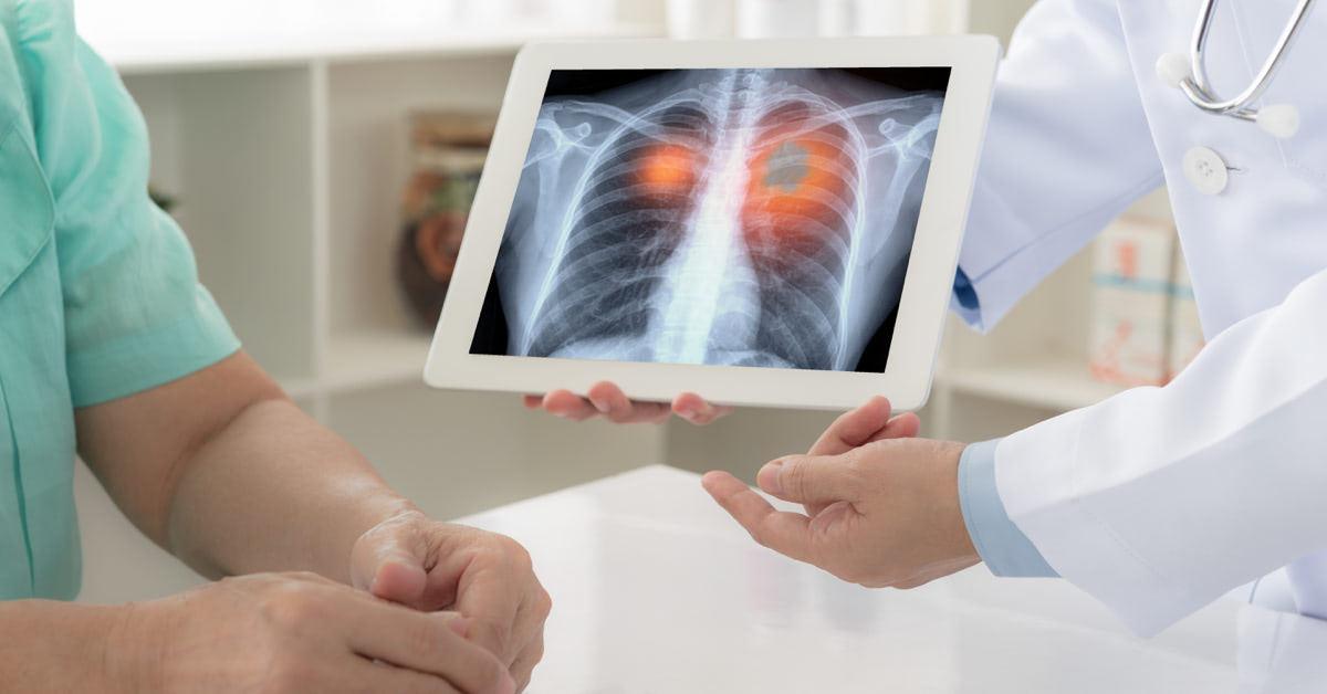 hpv és tüdőrák kockázata)