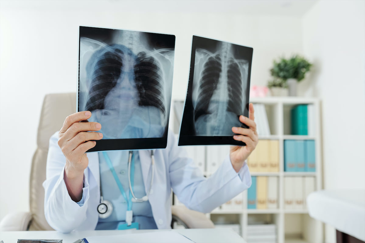 tüdőrák 20 éves korban